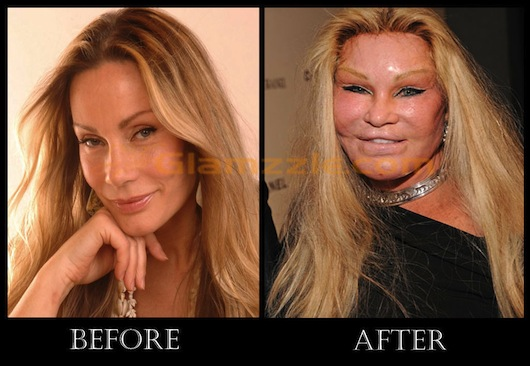 jocelyn-wildenstein-before-plastic-surgery